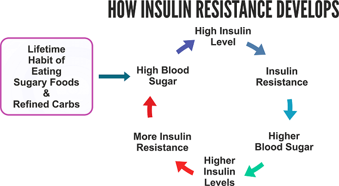 how insulin resistance develops