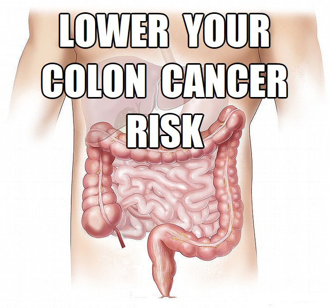 7 Steps To Lower Colon Cancer Risk